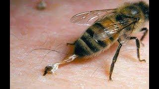 تعرف على فوائد لسع النحل وماذا يحدث إذا لسع النحل بعضه البعض !