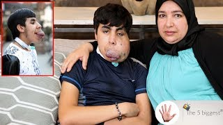 The Boy with blood balloon face! Before and after surgery pictures ~ Body Bizarre!