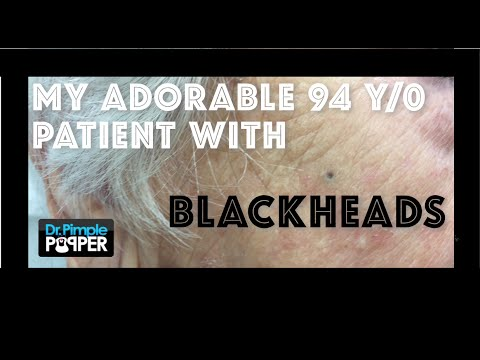 A sweet little 94 year old woman who wants her blackheads extracted