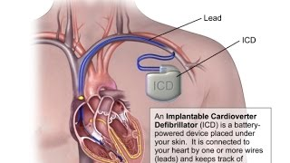 Things Doctors Don't Tell You About Defibrillators, Pacemakers, and ICD Devices