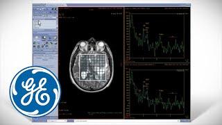 READY View Workflow: An MR Advanced Visualization Platform