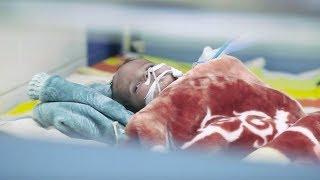 Fem barn drepes eller skades i Jemen-krigen hver dag