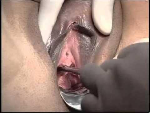 Categoria Uroginecologia Dr. Paulo Palma Cirurgia