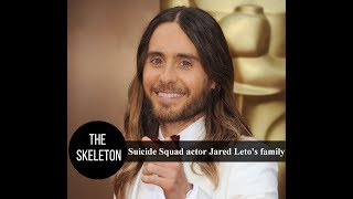 Suicide Squad actor Jared Leto