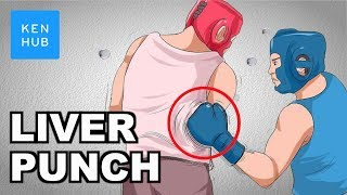 Why can't your body handle a punch to the liver? - Human Anatomy  Kenhub
