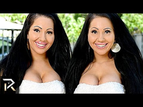 10 Unusual Twins You Won't Believe Exist