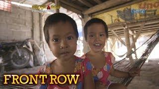 Front Row: Conjoined twins sa Pangasinan, napaghiwalay na