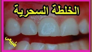خلطة القرفة لعلاج اوجاع والام الاسنان طبيعي/مسكن الم الاسنان