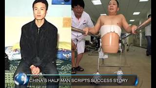 Half-Man of China rewrites destiny I World Konnect