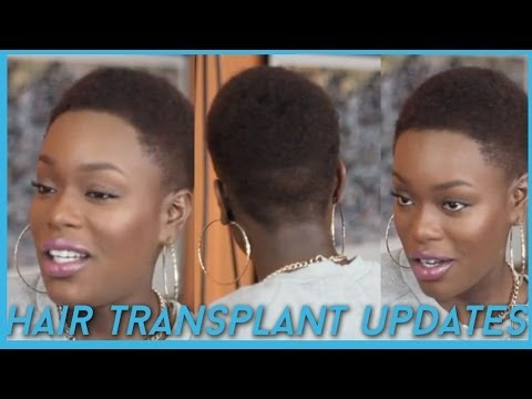 Hair Transplant \ Hairline lowering UPDATES + Favorites Natural Hair Products