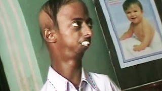 Dr. Jainya Ke Patient - Asif Albela | Khandesh Comedy Video