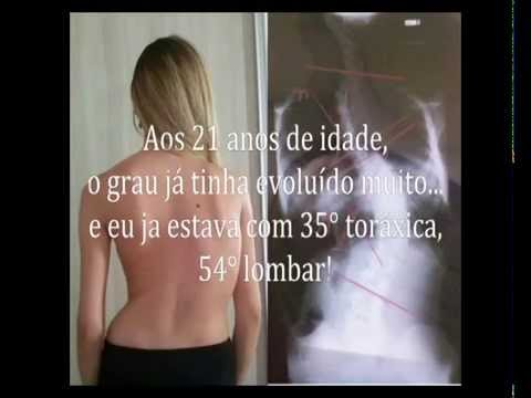 Cirurgia de Escoliose Monique Rodrigues
