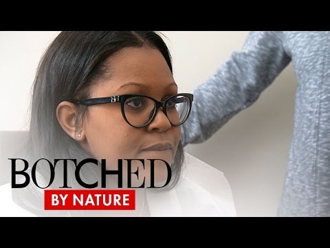 Botched by Nature | Uneven Breasts Are a Big Deal on