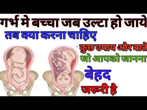 Xxx Mp4 गर्भ में उल्टा बेबी होने पर क्या करना चाहिए Breech Position During Pregnancy 3gp Sex