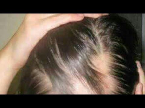 Xxx Mp4 تكثيف وتقوية الشعر وفوائد بذر الكتان 3gp Sex