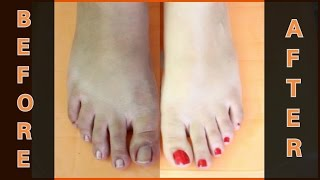 FEET WHITENING PEDICURE (at home) - Remove SUN TAN & WHITEN YOUR SKIN