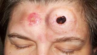 Bot Flies, Navel Stones and Blackheads;  Mr. Blackheads Most Popular Popping Videos! x