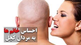 خانم ها نسبت به مردان کچل چه احساسی دارند؟ - تهران پلاس | Tehran Plus