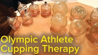 Chinese Cupping Therapy - Michael Phelps Olympics Bruise Mystery Solved | Pain Relief and Therapy