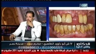 الدكتور والناس الحلوة | الحل الأمثل لتعويض الأسنان المفقودة مع د.شادى على حسين
