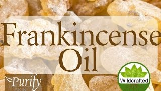 Frankincense Essential Oil ~ All You Need To Know!