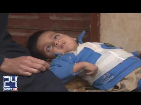 Peshawar parents worried for son health condition