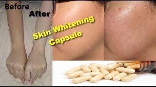 Skin Whitening Remedy | Get Instant White & Glowing Skin | Skin Care Routine