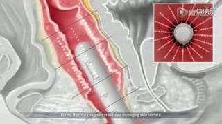 B 101 Vaginal HIFU machine Video