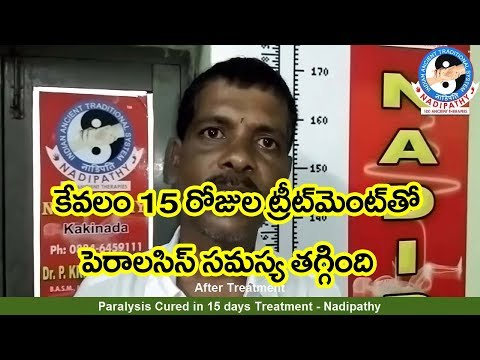Paralysis cured in 15 days Treatment - Nadipathy
