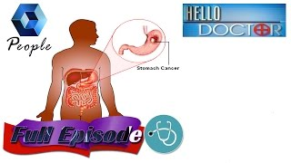 Hello Doctor: Dr Ranjith Hari On Stomach Cancer |  20th April 2015 | Full Episode