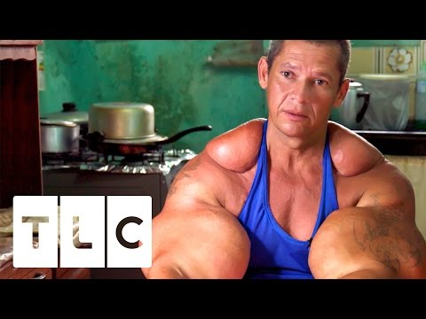 Xxx Mp4 Bodybuilders Inject Muscles With Oil Real Life Hulks 3gp Sex