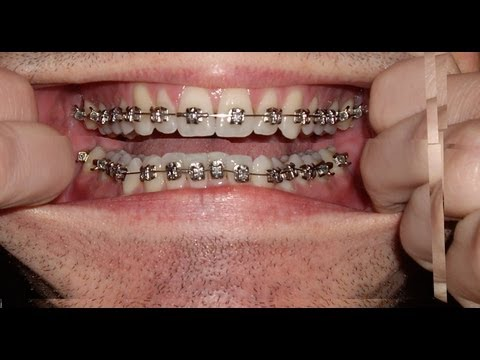 Braces Photo taken every day Before and After Transformation Orthodontics Timelapse