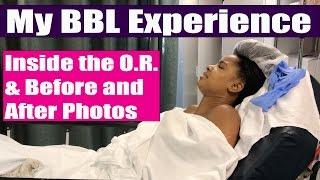 Brazilian Butt Lift Experience | BBL Surgery: Before & After