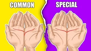 Things Your Palm Reveals About You