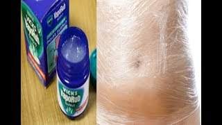 How to Use Vicks VapoRub to Get Rid of Accumulated Belly Fat