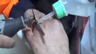 Parmağındaki yüzüğü AFAD ekibi çıkardı