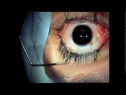 Operación Miopia y Astigmatismo