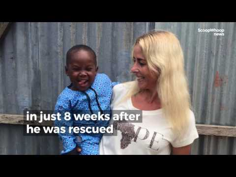 The Rescue Of A Starving 'Witch' Child Is Hope For Humanity Anja Ringgreen Loven