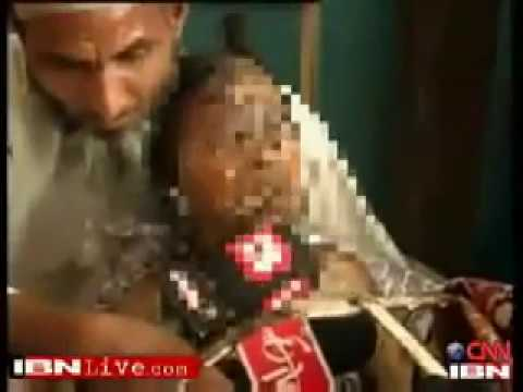 Muslim Burns 11 Year Old Girl Alive, For Wearing Lipstick
