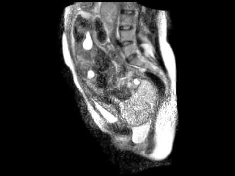 Video  Human birth in an MRI