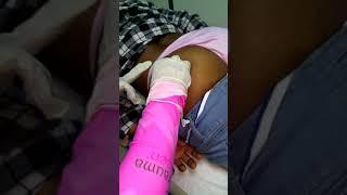 Aplicación inyección intramuscular-glúteo / How to give an intramuscular injection (subt)