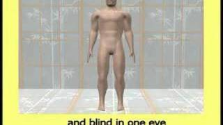 Exactly why masturbation causes crippling and blindness