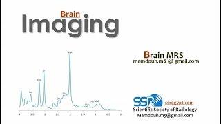 MR Spectroscopy in Brain - DRE 10 - Prof. Dr. Mamdouh Mahhfouz