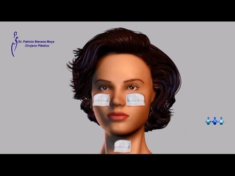 Recomendaciones Post-operatorio Lifting Facial