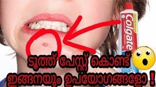Toothpaste കൊണ്ടുള്ള അത്ഭുതപ്പെടുന്ന 7 ഉപയോഗങ്ങൾ | 7 surprising uses of toothpaste | Malayalam