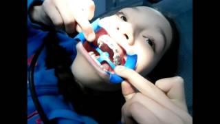 vamos al dentista como me ponen los brackets