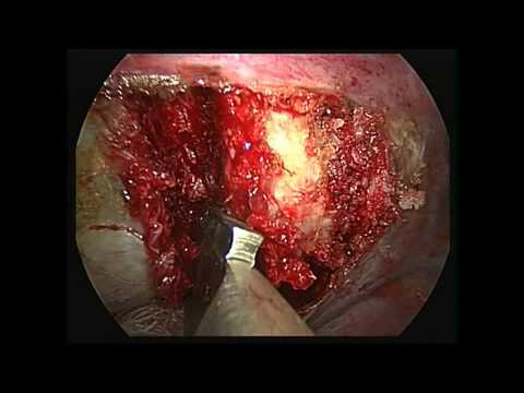 1 of 2 Anterior Discectomy & Posterior Spinal Instrumentation and Fusion