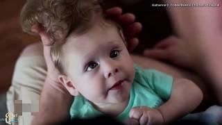 عندما ولد هذا الطفل بكى الجميع لان دماغه خارج رأسه   عملت أمه شيء صدم الجميع ! شاهد كيف اصبح اليوم