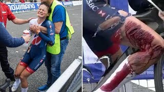 Cyclist Suffers NASTY Injury in Crash, Crosses Finish Line Anyway