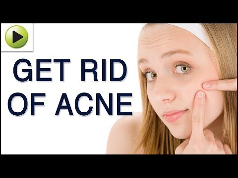 Skin Care - Home Remedies for Acne Treatment